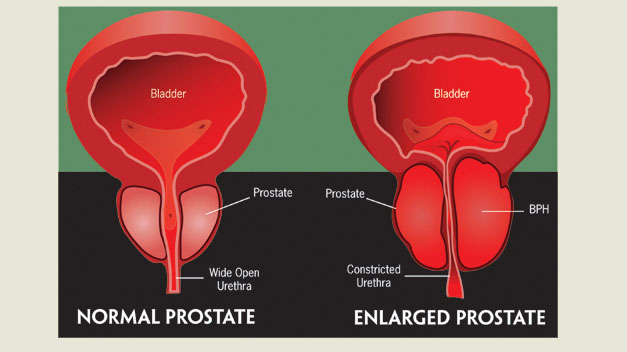 Bladder prostate anatomy